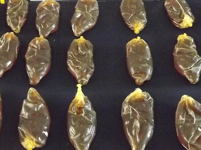 Traían Cocaína Líquida en sus Estómagos: PDI Detiene a Dos  Peruanas con Ovoides